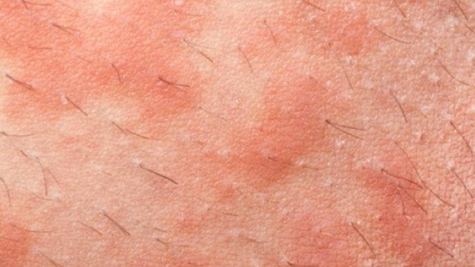 如何治疗肛周湿疹