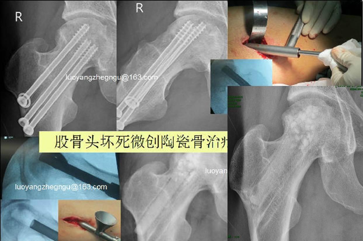 图22 股骨颈<!--HAODF:8:guzhe--><!--HAODF:8:guzhe--><!--HAODF:8:guzhe--><!--HAODF:8:guzhe--><!--HAODF:8:guzhe--><!--HAODF:8:guzhe--><!--HAODF:8:guzhe-->骨折<!--HAODF:/8:guzhe--><!--HAODF:/8:guzhe--><!--HAODF:/8:guzhe--><!--HAODF:/8:guzhe--><!--HAODF:/8:guzhe--><!--HAODF:/8:guzhe--><!--HAODF:/8:guzhe-->术后坏死的挽救.jpg