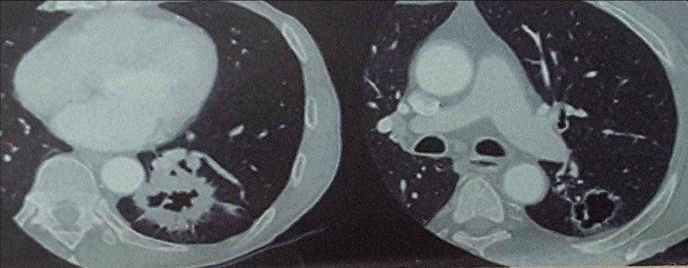 图1.左图示厚壁空洞,右图示薄壁空洞。