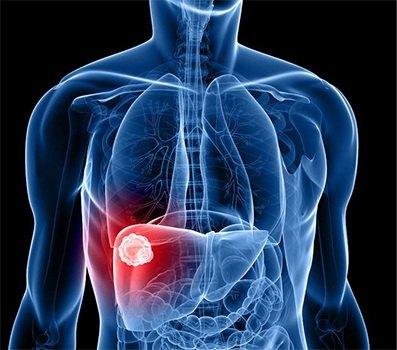 weight-obesity-liver-cancer-735-350.jpg