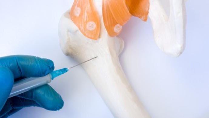 多发性骨髓瘤一般能活多久?