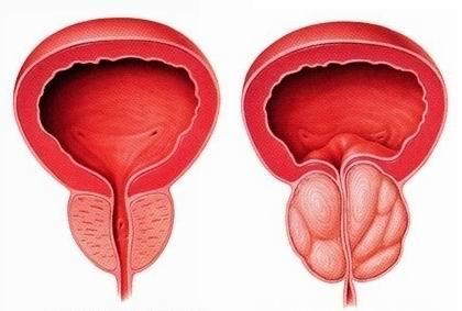 左图为正常前列腺,右图为前列腺增生
