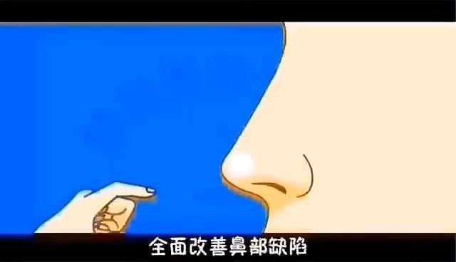 鼻翼宽大,可以不做鼻翼缩小手术改善吗?并不是所有鼻翼宽大,就一定要缩鼻翼。鼻尖抬高,鼻翼自然缩小。