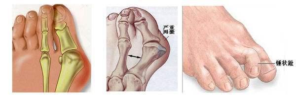 脚趾变形,周围还长老茧,我们的脚到底是怎么了?