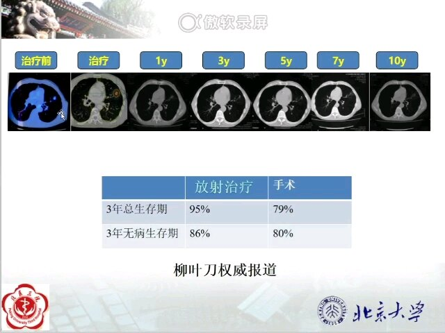 对于肺癌放射治疗疗效如何