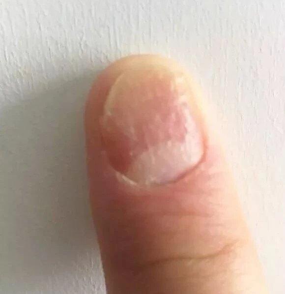 银屑病指甲太受伤,很多被误诊
