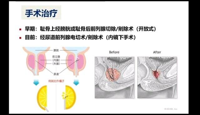 前列腺增生的常见手术方式