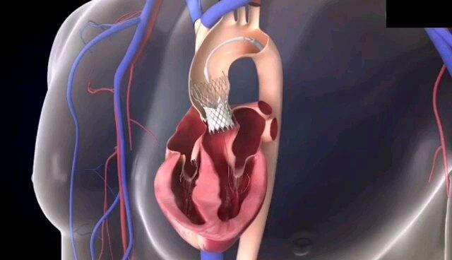 经导管主动脉瓣置换术(TAVR/TAVI)
