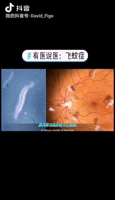 有医说医:飞蚊症 #眼健康科普短视频
