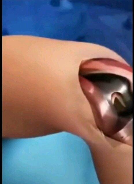 人工膝关节表面置换是如何手术的?