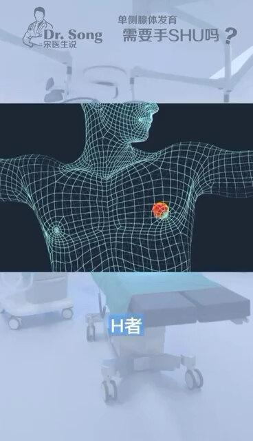单侧男性乳腺发育是否需要治疗?