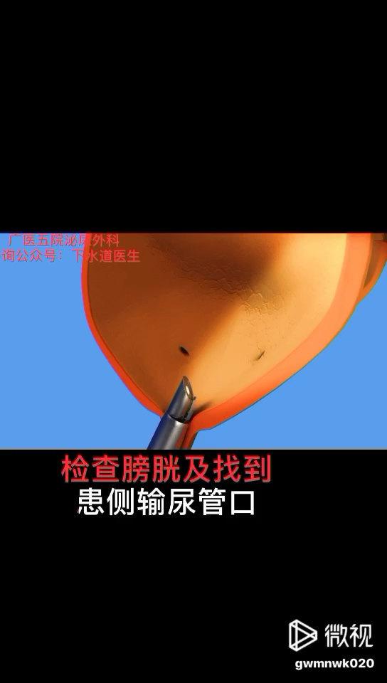 动画~输尿管软镜碎石取石术,一种接近无创的手术。