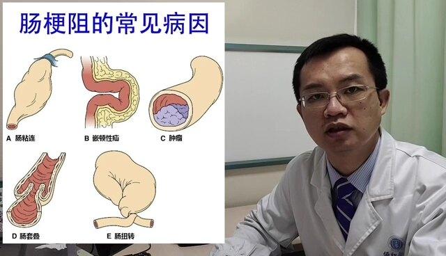 什么是肠梗阻?