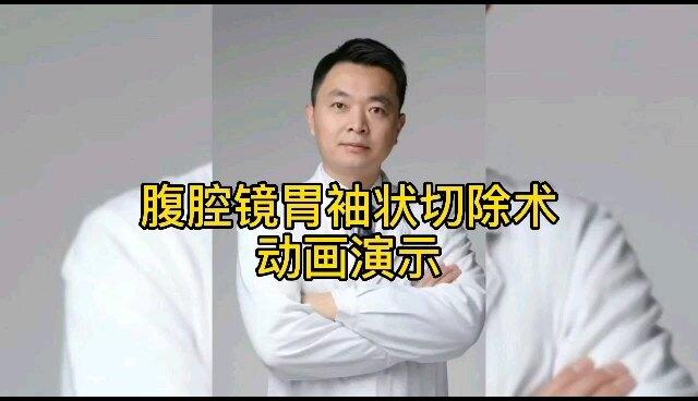 【肥胖症】58秒了解腹腔镜胃袖状切除术全过程,为什么是袖子?为什么会掉秤?