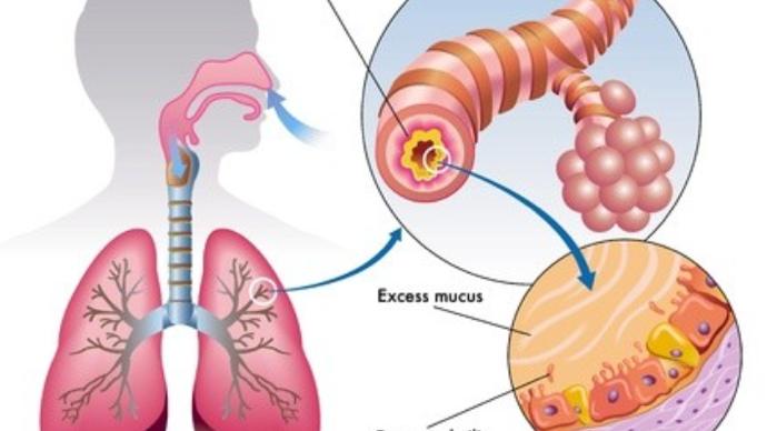肺部真菌感染能治好吗