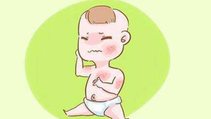 孩子得了特应性皮炎该如何护理