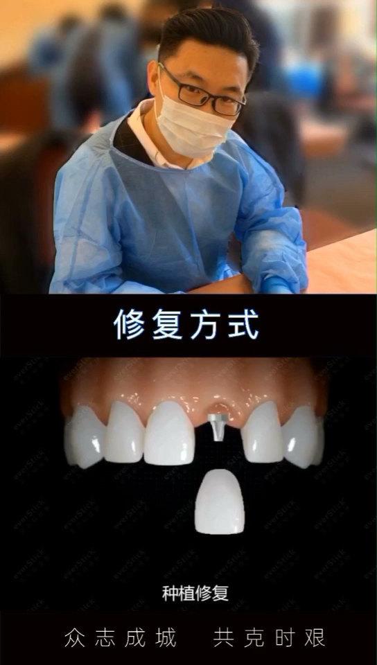口腔科普:修复方式